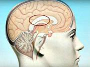První pomoc při cévní mozkové příhodě - mozkový infarkt